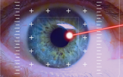How Does LASIK and PRK surgery Work?